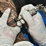 Tattoo Ink-Related Cutaneous Pseudolymphoma.